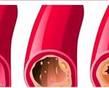 10 nаmirnicа kоје odčepljuju arterije na potpuno prirodan način