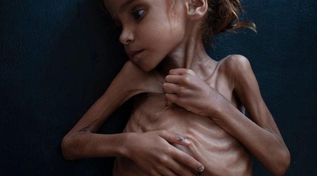 Preminula djevojčica čija je fotografija skrenula pažnju svijeta na glad u Jemenu
