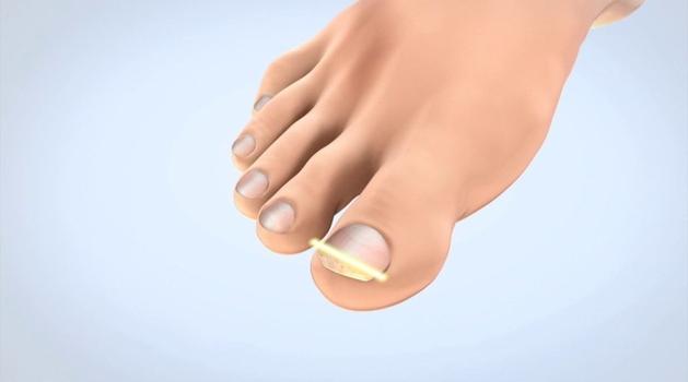 Češnjak kao prirodni lijek za gljivice na nogama