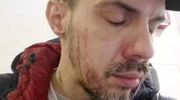 Tomović više neće pjevati u Srbiji